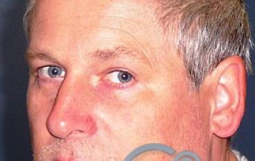 Chi riconosce l'uomo trovato a Melito di Porto Salvo (RC)?