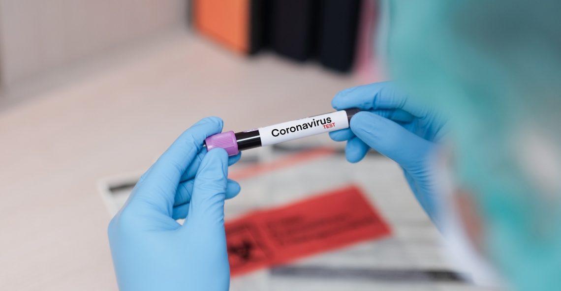 Una vittima a Stefanocodi a causa del Coronavirus