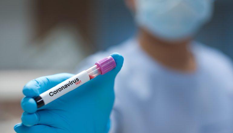 Coronavirus in Calabria, bollettino Regione 10 Settembre