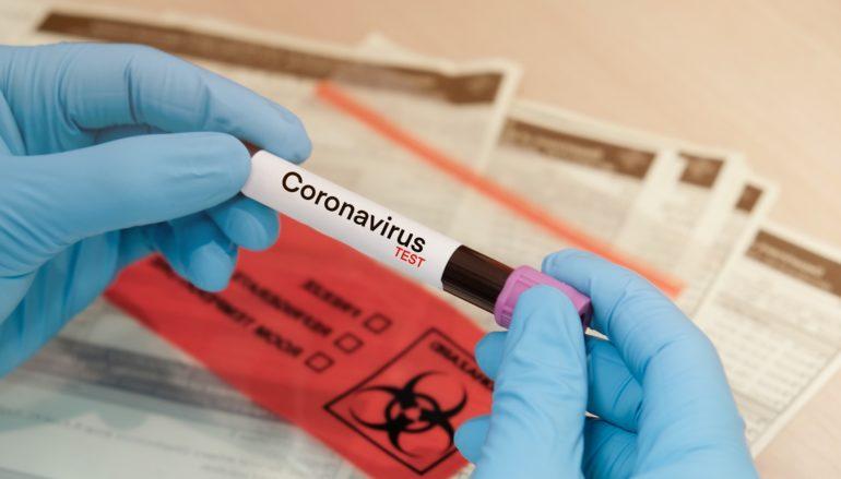 Coronavirus in Calabria, bollettino Regione 18 Settembre