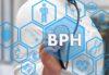Ipertrofia prostatica: descrizione e diagnosi